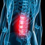 Ernia del disco e discopatia lombare
